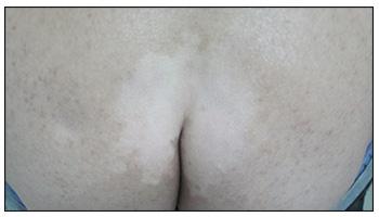小孩屁股上有一块白色皮肤