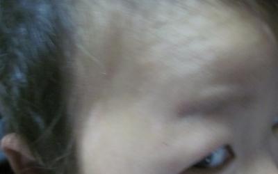 婴儿出生后脸上有白斑