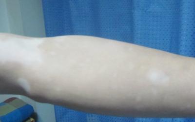 小孩手上手臂上长满了白色的点