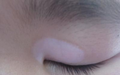 儿童眼皮上长白斑块图片