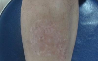 孩子腿上有一小块比其他皮肤白