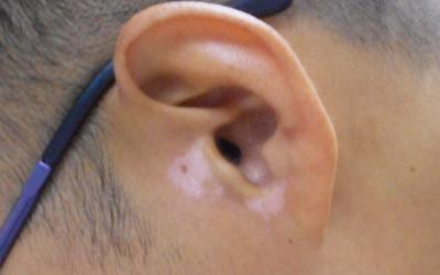 小孩子耳朵边比别的地方白 皮肤白一块怎么回事