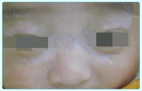 婴儿白斑初期症状图片 白斑和白癜风的区别