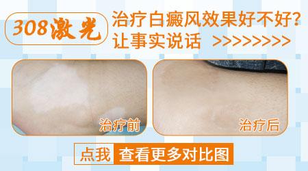 小孩7岁手臂开始长白斑的原因