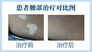 男性白癜风表皮移植1月以后图片
