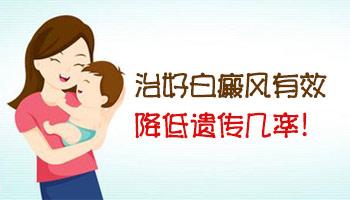 怀孕了能检测孩子有没有白癜风