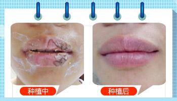 女性嘴部白癜风能打疫苗吗