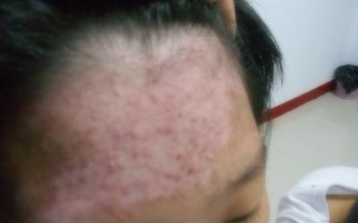 15岁男孩额头白斑痒是什么原因