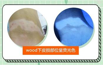 伍德灯检查白斑结果 白癜风在伍德灯下的图片
