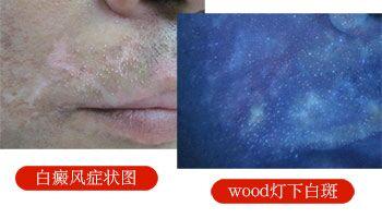 伍德灯照射脸部有许多荧光白点