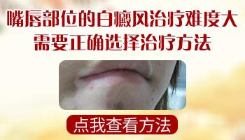 嘴唇发现一块白的皮肤是不是白癜风