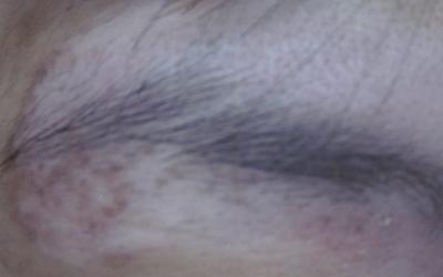 眉毛处的皮肤白一块是白癜风吗