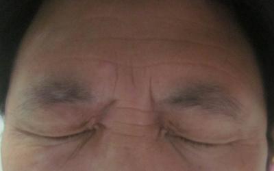 两个眼角长了一块白是怎么了