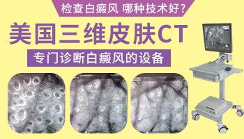 三维皮肤ct检查多少钱