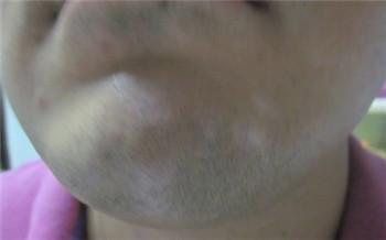 下巴上淡白色的斑点如何判断是不是白癜风