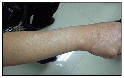 腿上和手臂上长白点不疼也不痒是什么