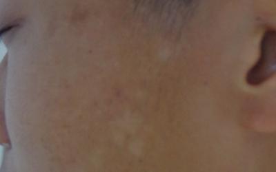 小孩子脸上有一块一块的圆形白斑
