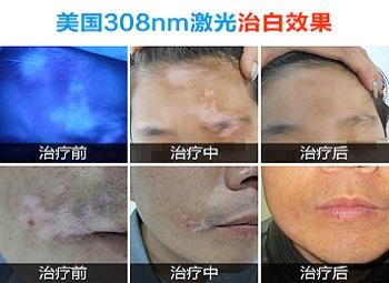 面部白斑初期症状图片
