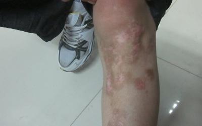 小腿上一块发白的皮肤半年多了怎么回事