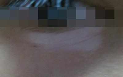 下眼皮有一大块白的皮肤是什么