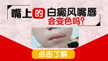 嘴巴上有两处浅白色白斑是什么