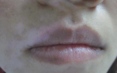 上嘴唇中间一小块变白