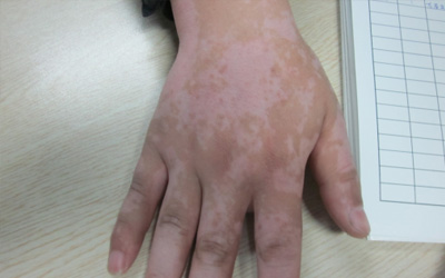 手指关节长白斑 白斑图片对比