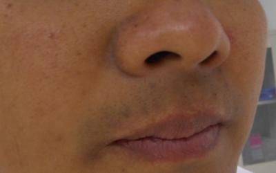 嘴唇白斑是不是白癜风 早期白癜风的症状