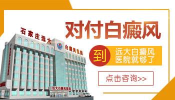 河北省治白癜风治得好的医院