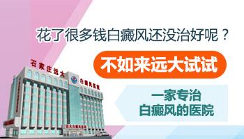 河北省白癜风医院排名
