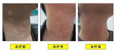 白癜风植皮手术后复色过程