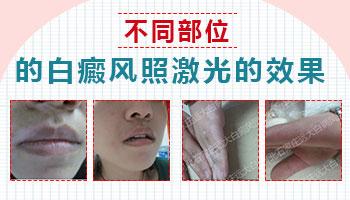 308治疗白斑一般几个月有效果