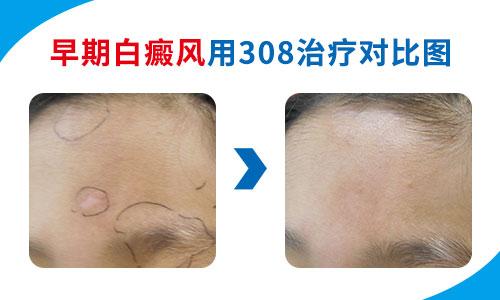 白癜风治疗后的图片