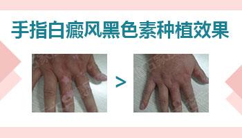 手指白斑植皮手术后恢复图