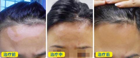 308激光照射脸部白癜风的恢复过程