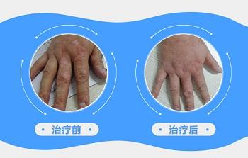 手部白癜风植皮手术取皮处恢复图