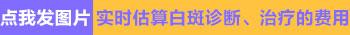 白癜风照紫外线收费标准