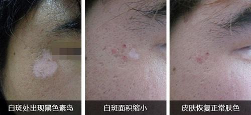 脉冲激光治疗白斑恢复过程图片