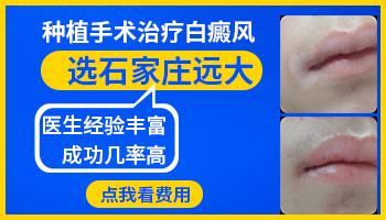 治疗白癜风皮肤移植有哪些医院