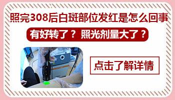 308准分子激光治疗白斑红肿