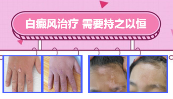 手指中间的白癜风能治好吗