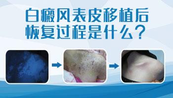 白癜风表皮移植术后照片