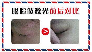 眼皮白癜风多长时间可以恢复