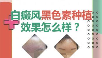 皮肤移植吸泡术治疗白癜风效果好吗