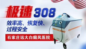 308激光治疗白癜风生殖器有影响吗