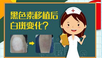 白癜风植皮恢复效果 白斑做植皮一次能成功吗