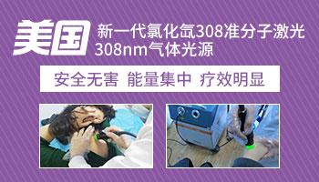 哪些医院有308激光 光疗治白癜风多少钱