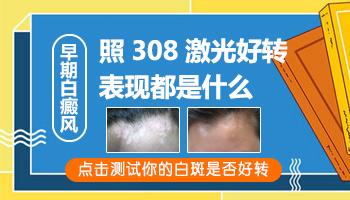 用308紫外线治疗白癜风如何确定是否好转