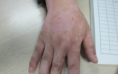 手背上有小白点是什么 长白点的原因