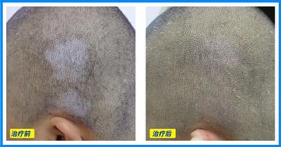 白癜风长在头上做激光要不要剃头发